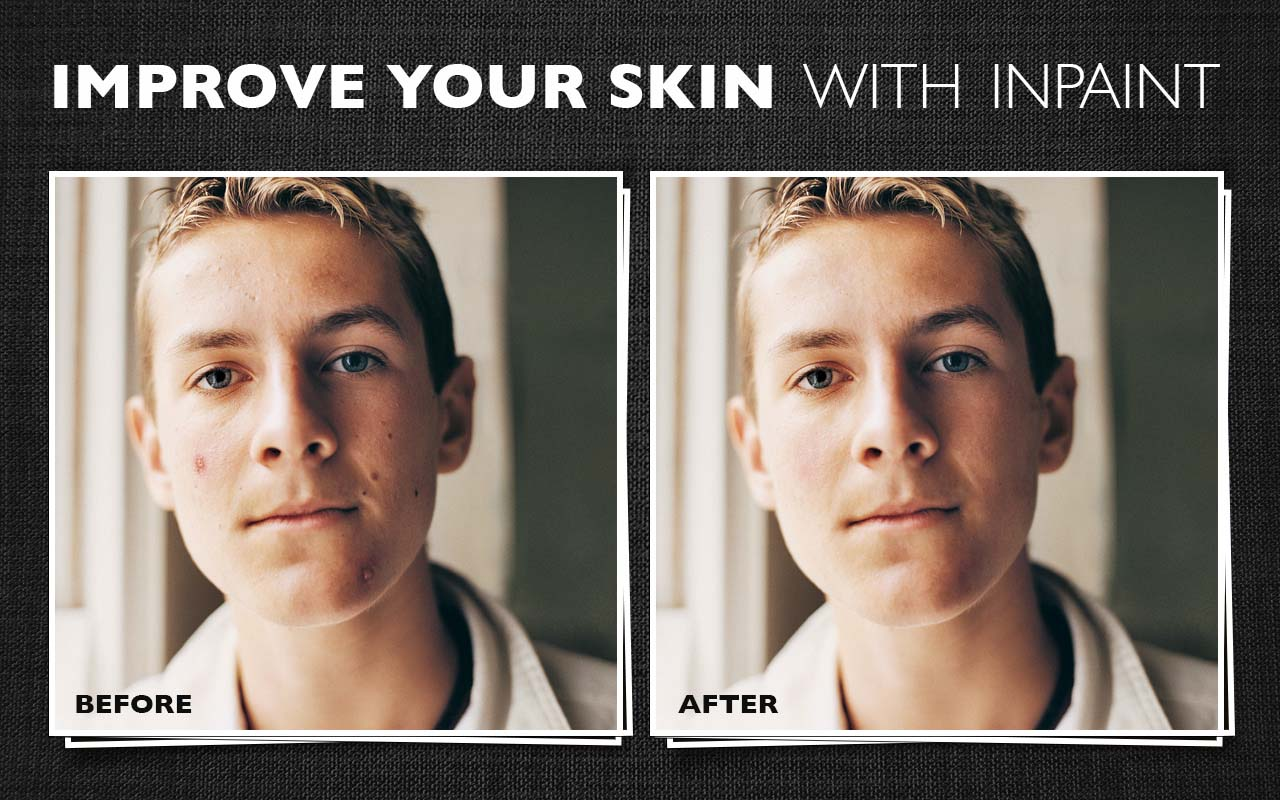Retouch wrinkles, remove skin defects